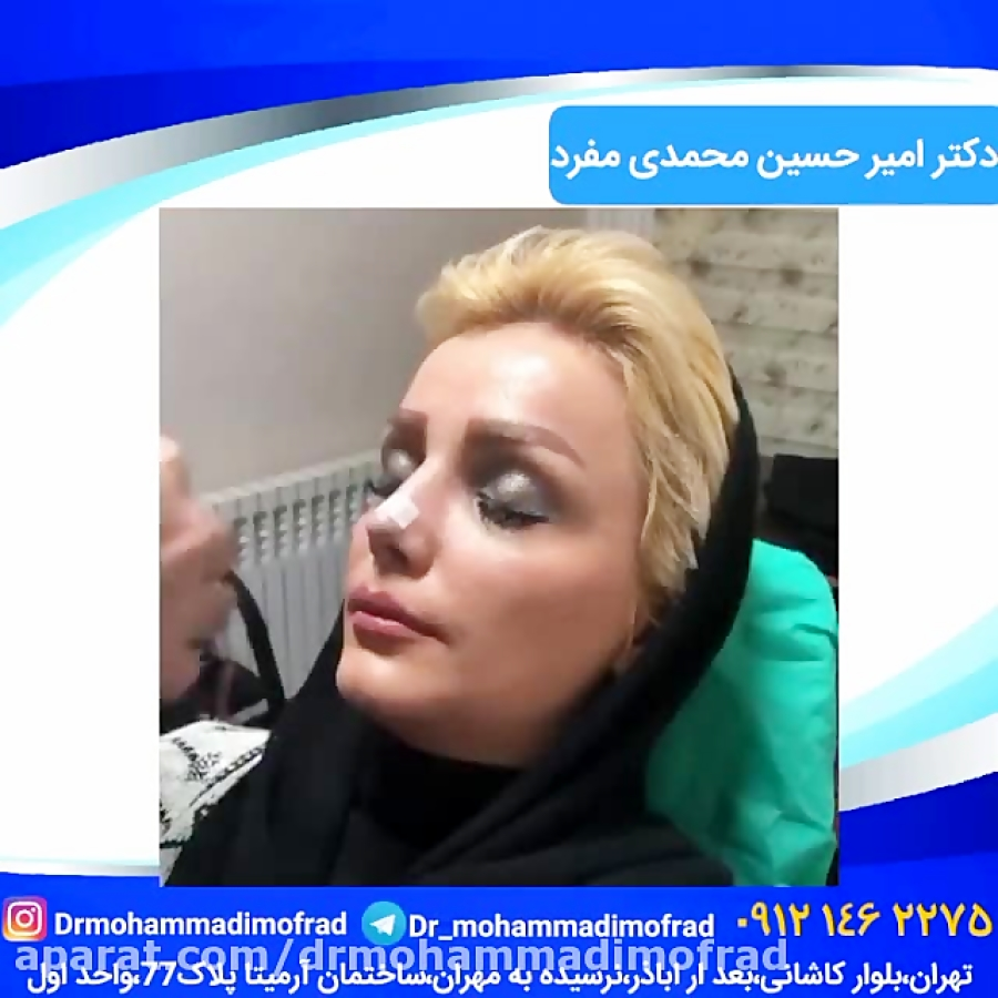 آموزش چسب زدن بینی (دکتر امیر حسین محمدی مفرد)09215256755