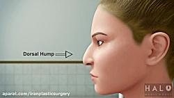 انیمیشن جراحی زیبایی بینی