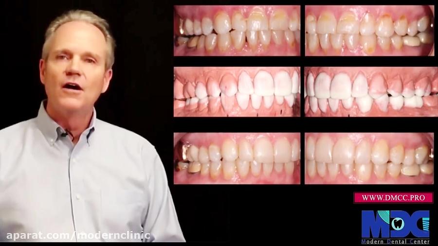 فیلم: معرفی تکنیک دایرکت ونیر کامپوزیت|کلینیک دندانپزشکی