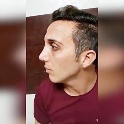 نمونه جراحی بینی | جراحی بینی کرمانشاه
