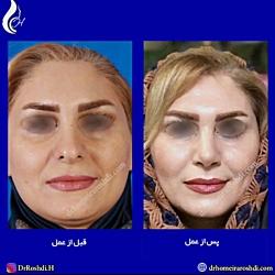 قبل و بعد از جراحی بینی | جراح بینی تبریز