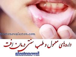 طب سنتی و داروهای گیاهی درمان افت دهان