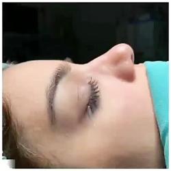 جراح زیبایی بینی(عمل بینی)