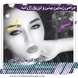 نمونه جراحی های زیبایی بینی   دکتر ماریا مرادی