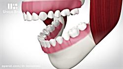 پل دندان ( بریج دندان ) | دکتر عطایی