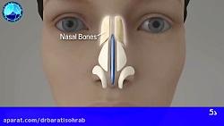 جراحی زیبایی بینی های سرپهن