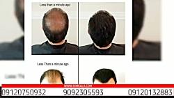 اسپری پرپشت کننده مو fh|پرشت کننده مو|بهترین روش پرپشت کردن مو| 09120132883