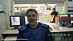 جراحی تنگی پیشرفته دریچه ائورت بدون جراحی باز در بیمارستان فوق تخصصی بهمن