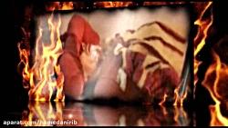 تصاویری از حوادث چهارشنبه آخر سال در اثر استفاده از مواد محترقه خطرناک