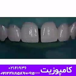 کامپوزیت دندان در کلین...