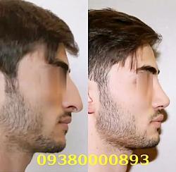 نمونه قبل و بعد از عمل بینی مشهد | 09380000893