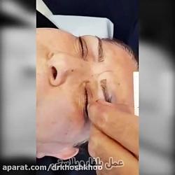 عمل زیبایی پلک یا بلفاروپلاستی   دکتر کیوان خوشخو