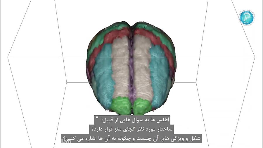 اطلس مغزی بیماری آلزایمر