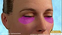 عمل زیبایی لیفت چشم (لیفت پلک یا بلفاروپلاستی)