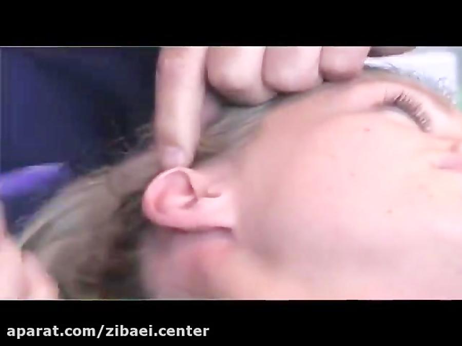 جراحی زیبایی گوش یا عمل اتوپلاستی - سایت زیبایی سنتر
