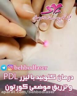 درمان کلوئید با لیزر PDL و تزریق موضعی کورتون