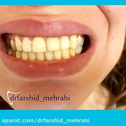فیلم لمینت دندان   لمینیت دندان