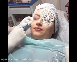 رفع تیرگی زیر چشم با مزوتراپی در مطب دکتر صبوری