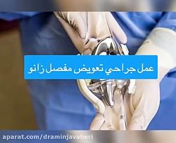 تعویض کامل مفصل زانو