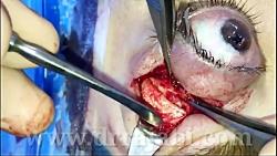 جراحی تومور سقف کاسه چشم