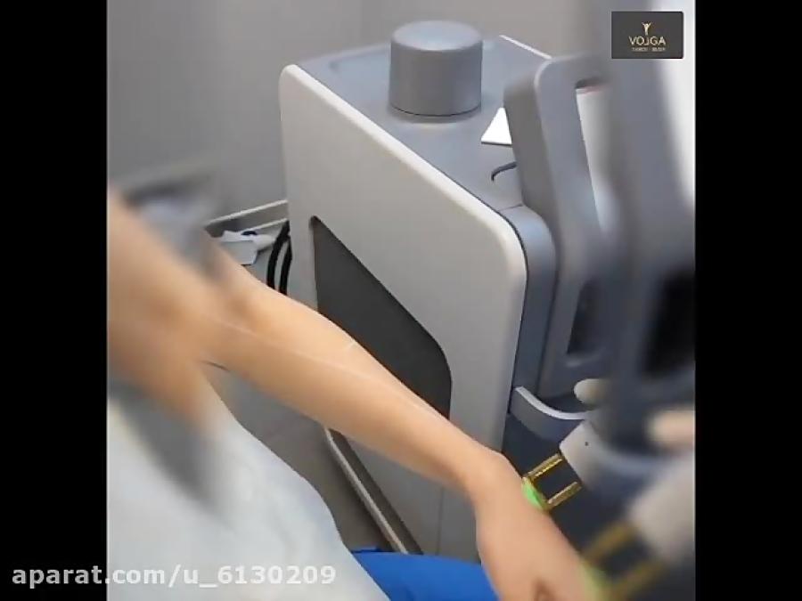 فیلم: لیزر موی زائد با استفاده از دستگاه الکساندرایت کندلا / ویدیو