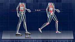 بهبود راه رفتن با KineticSte...