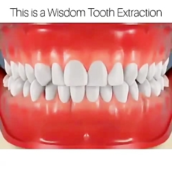جراحی دندان عقل -دکترمج...