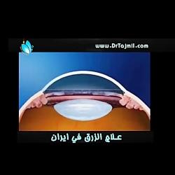 علاج الزرق في ايران - عل...