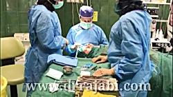 جراحی بلفاروپلاستی یا ...