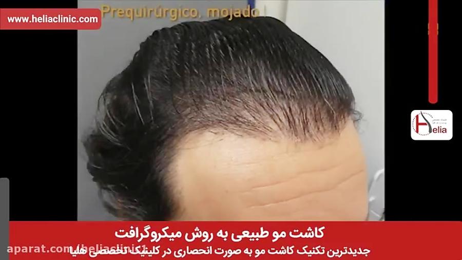 کاشت مو   فیلم کاشت مو   کلینیک پوست و مو هلیا   شماره 1