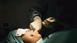 ١٠تا از عجيب ترين جراحى...