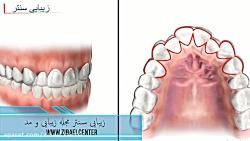 ارتودنسی نامرئی دندان,...