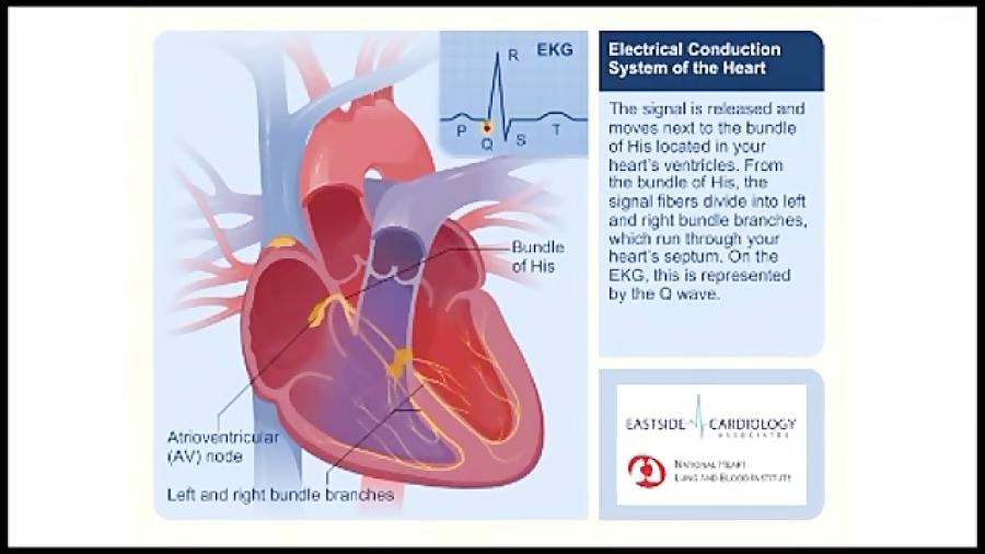 علکرد-و-الکترو-نگاری-قلب