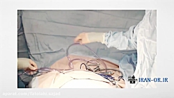 آموزش مقدمات عمل جراحی ...