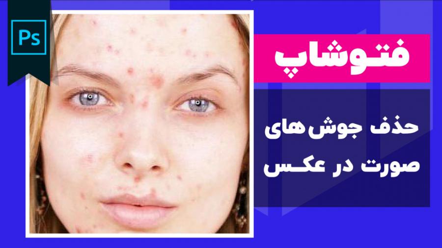 آموزش حذف جوش صورت در فتوشاپ