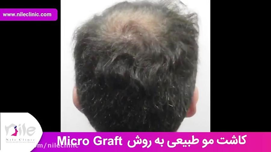 کاشت مو   فیلم کاشت مو   کلینیک پوست و مو نیل   شماره 23