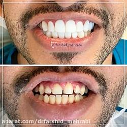 کامپوزیت دندان
