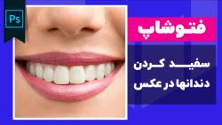 آموزش سفید کردن دندانها در فتوشاپ - آموزش 20
