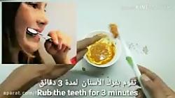 سفید کننده و جرم گیری طبیعی دندان