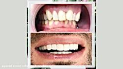 فیلم لمینت دندان،کامپو...
