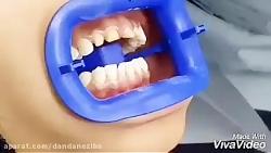 قیمت لمینیت سرامیکی سال 98 | بهترین مارک لمینیت دندان | انواع لمینیت های دندان