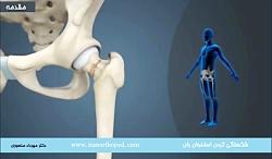 شکستگی گردن فمور در ناحیه لگن