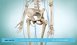 آرتروپلاستی مفصل ران چیست