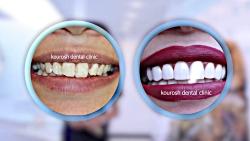 فیلم دندان کامپوزیت | قبل و بعد کامپوزیت دندان | کامپوزیت دندان جلو