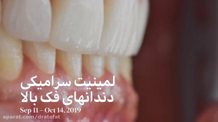 لمینیت سرامیکی دندان های فک بالا اصفهان .دکتر محمد عاطفت متخصص ترمیمی زیبایی