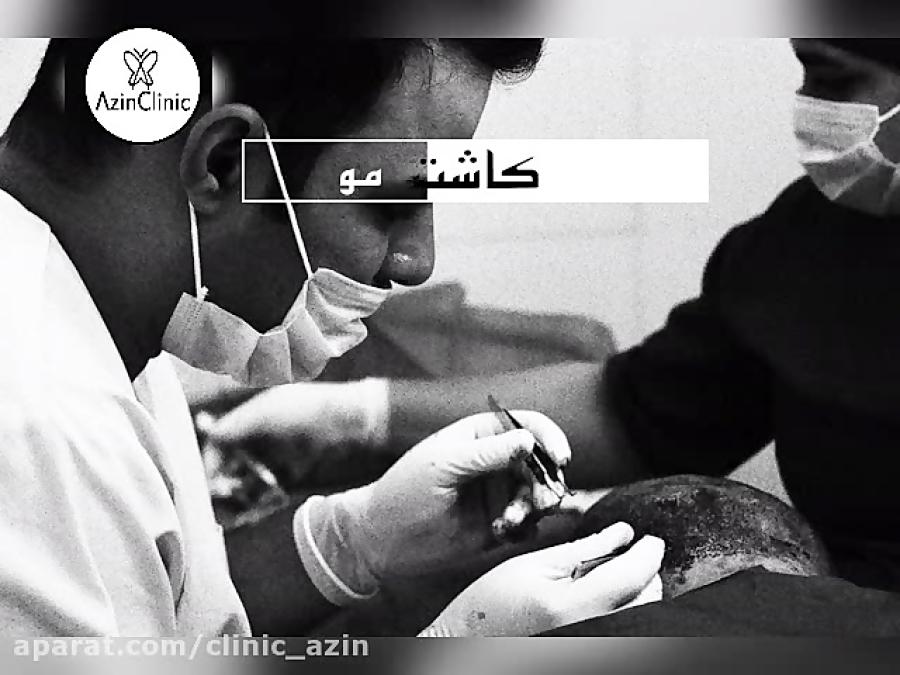 کاشت مو در کلینیک آذین بدون درد بدون خونریزی