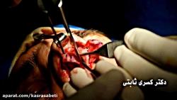 لطفا افرادحساس این ویدیو را نبینند-بخش دوم عمل جراحي بینی-دکتر ثابتی