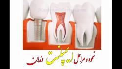 نحوه و مراحل ایمپلنت دندان