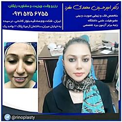 عمل جراحی زیبایی بینی (دکتر امیرحسین محمدی مفرد)