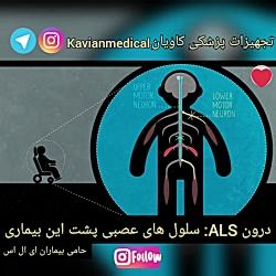 درون ALS: سلول های عصبی پشت این بیماری